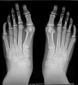 Spencer_Foot_Xray